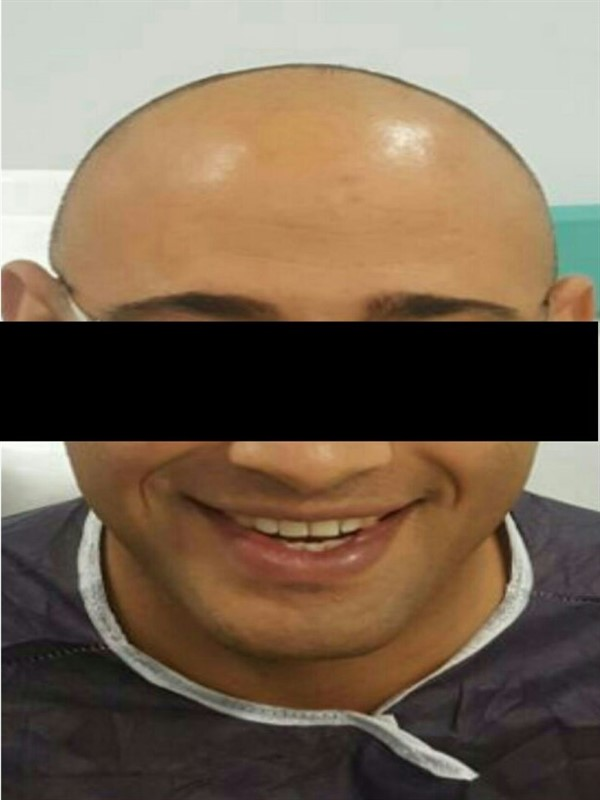 Hair Transplant Results - Hair Transplant Turkey Results - Hair Transplant Turkey Before and After