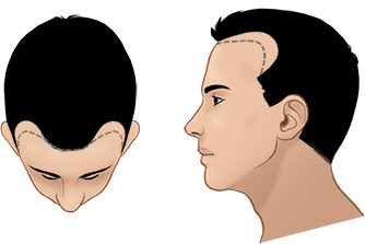 Norwood Scale For Hair Transplant - Norwood Scale Baldness - Norwood Hamilton Scale