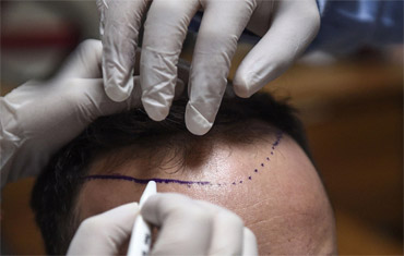 Fue Hair Transplant Technique Application - How Fue Works - Does Fue Hair Transplant Works